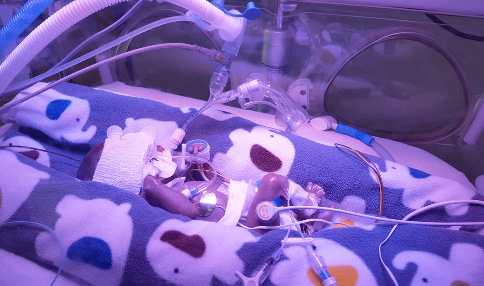 BABYBJÖRN Magazine – A preemie baby boy is cared for in an incubator.