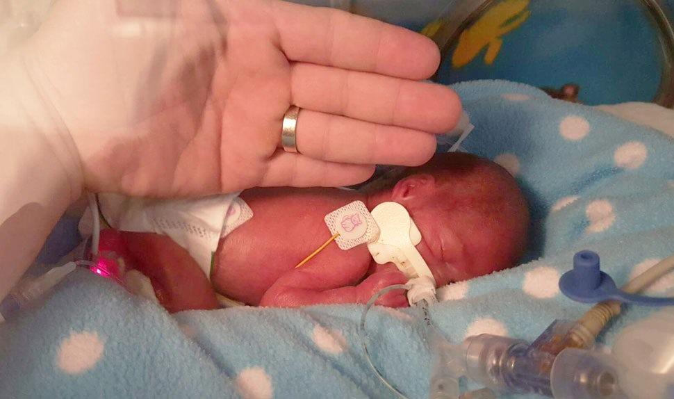 BABYBJÖRN Föräldramagasin – Förlossningsberättelse om en för tidigt född pojke.